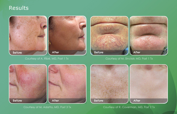 skin-revitalization-email-results-600x385